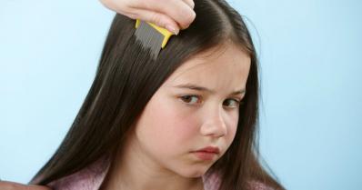 Kako istrebiti vaške na glavi?