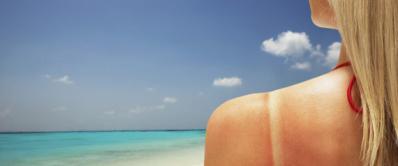 Kako oporaviti kožu posle sunčanja?